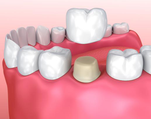 Why Are Dental Crowns Needed