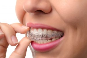 Tysons Dental Spa Clear Aligners