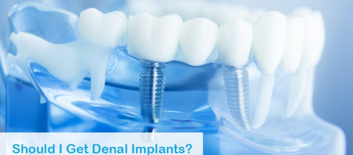 2020 07 Tysons Should I Get Dental Implants